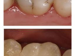 Tooth Colored Filling Replacing Amalgam
