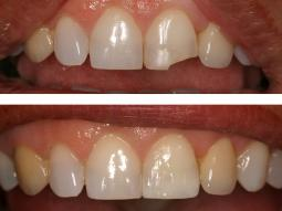 Fractured tooth Bonding by our Cosmetic New York Dentist