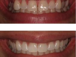 Invisalign braces in our Manhattan office