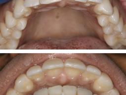 Orthodontic Invisalign dentistry in our Manhattan office