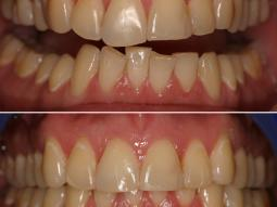 An Invisalign treatment result in our Manhattan office