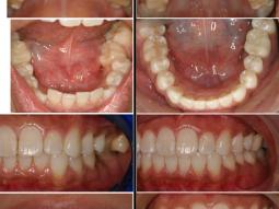 Before and after photos of Invisalign Braces