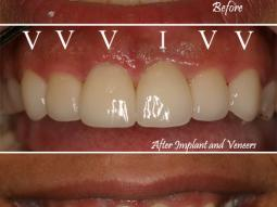 Implants and Veneers Labeled
