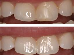 Lifeless and Discolored Bonding Repaired in our Manhattan Dental Office