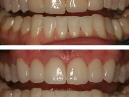 Veneer Makeover porcelain by our Cosmetic New York Dentist