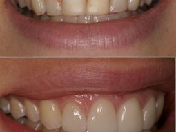 These Porcelain Veneers and the Gum Tissue Still look Perfect