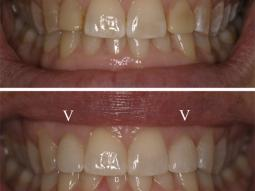 There are only 2 Veneers here. They match the other natural teeth Perfectly.